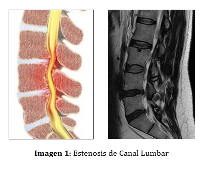 ESTENOSIS LUMBAR EPUB DOWNLOAD
